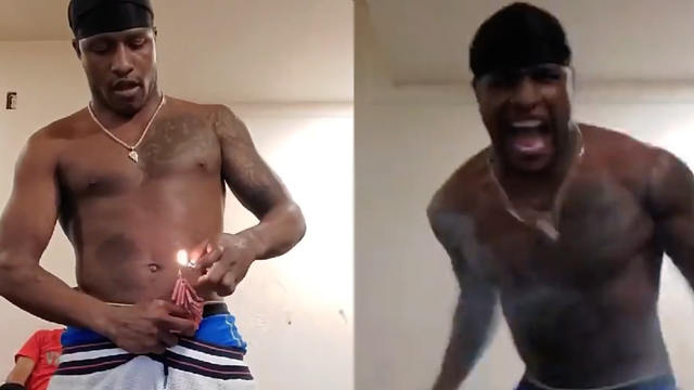 dude sets firecrackers off in pants